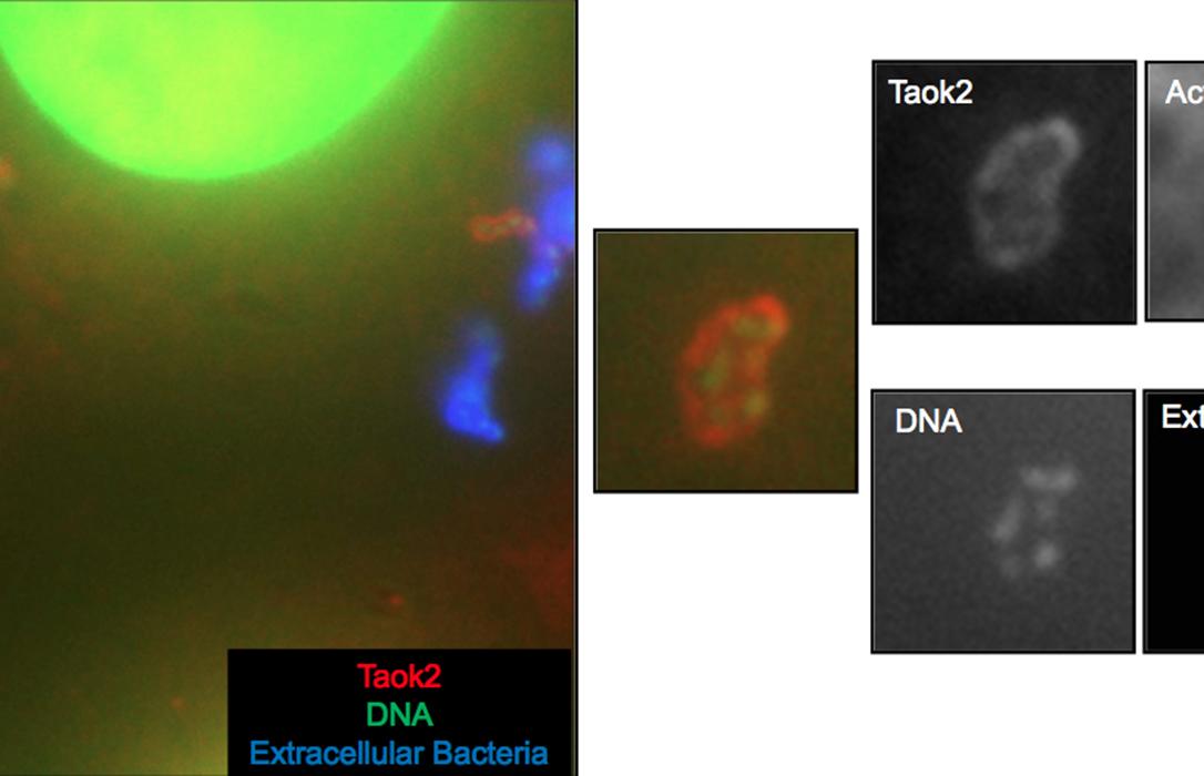 Un profesor de la CEU UCH publica nuevos hallazgos sobre los mecanismos de infección por Listeria